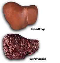 alcoholic liver disease case report